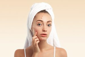 closeup-young-woman-with-towel-head-pimples-face_273609-14430